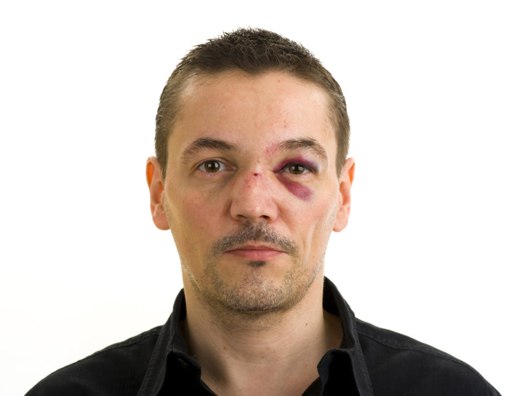 man with broken nose and black eye